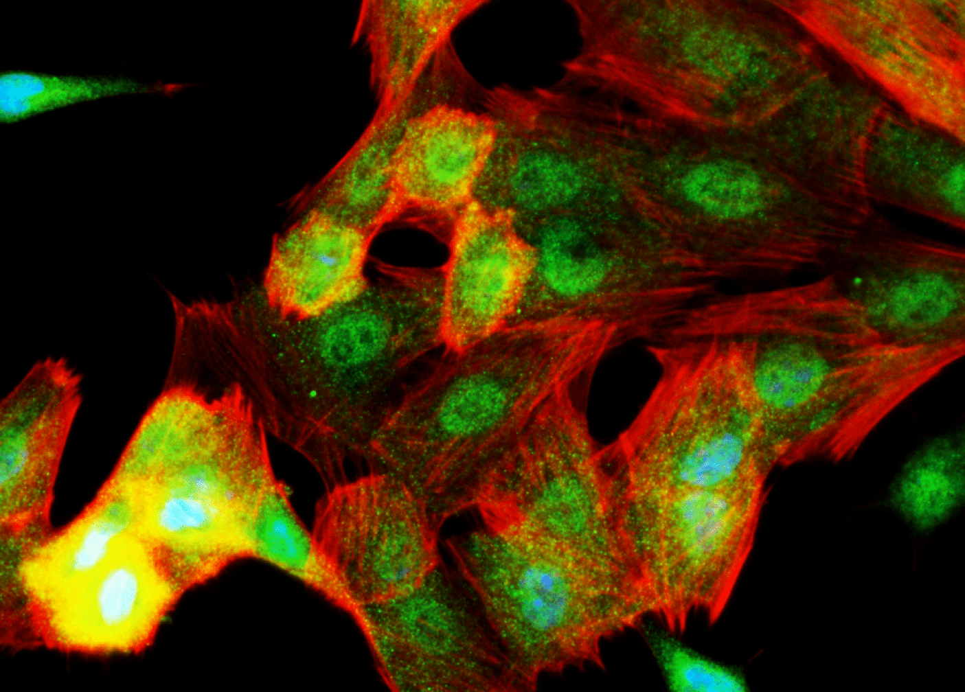 ret-cells_credit_chakravartilab